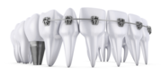Find the Number One Lancaster Implant Dentist? Contact now!